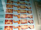 天然痘.jpg